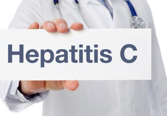 Hepatitis C Symptoms