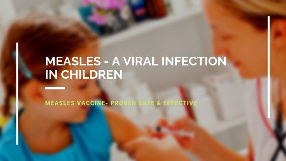 Measles - A Viral Infection in Children
