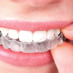 Cost for Invisible Braces