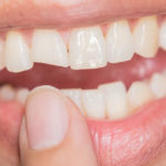 What are the Treatments to Fix the Broken Teeth?