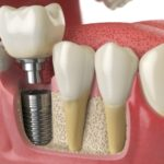 Important Tips for the Dental Implants Ever