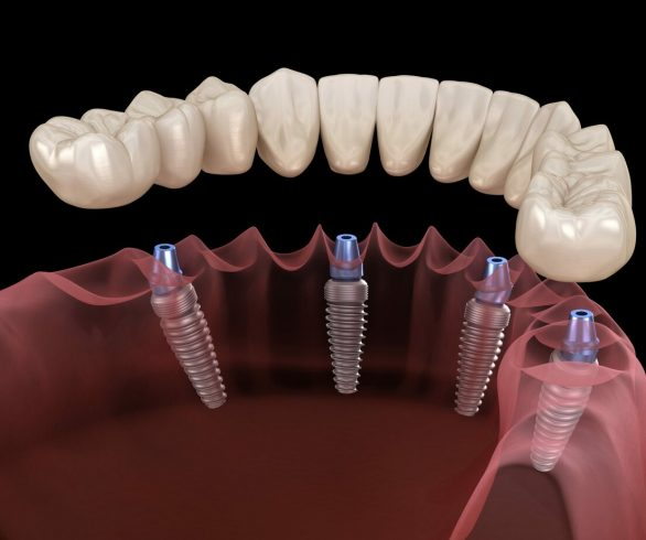 all on 4 dental implants recovery time